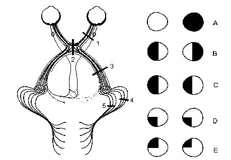 Olfactory Pathway and Optic Pathway