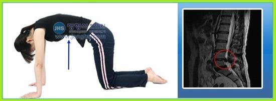 허리통증(요통)에 좋은 찜질이나 물리요법